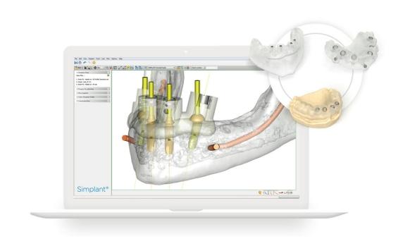 インプラント術前シミュレーションソフト